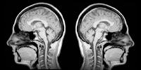 Radioterapia intracraneal cabeza cuello Surgest Medical
