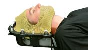 srs-srt-surgest-medical-radioterapia